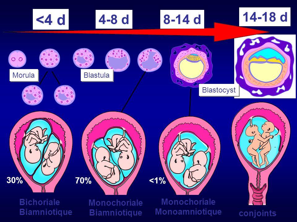 Morula Blastula Blastocyst Bichoriale Biamniotique Monochoriale Biamniotique conjoints Monochoriale Monoamniotique <4 d 4-8 d8-14 d 14-18 d 30% 70%<1%