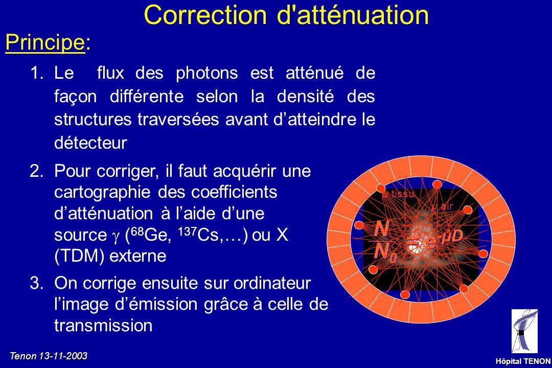 Tenon 13-11-2003 Hôpital TENON Mode 3D ou mode 2D Cristal Septa Les septa réduisent: les coïncidences fortuites ( angle solide effectif) le rayonnemen