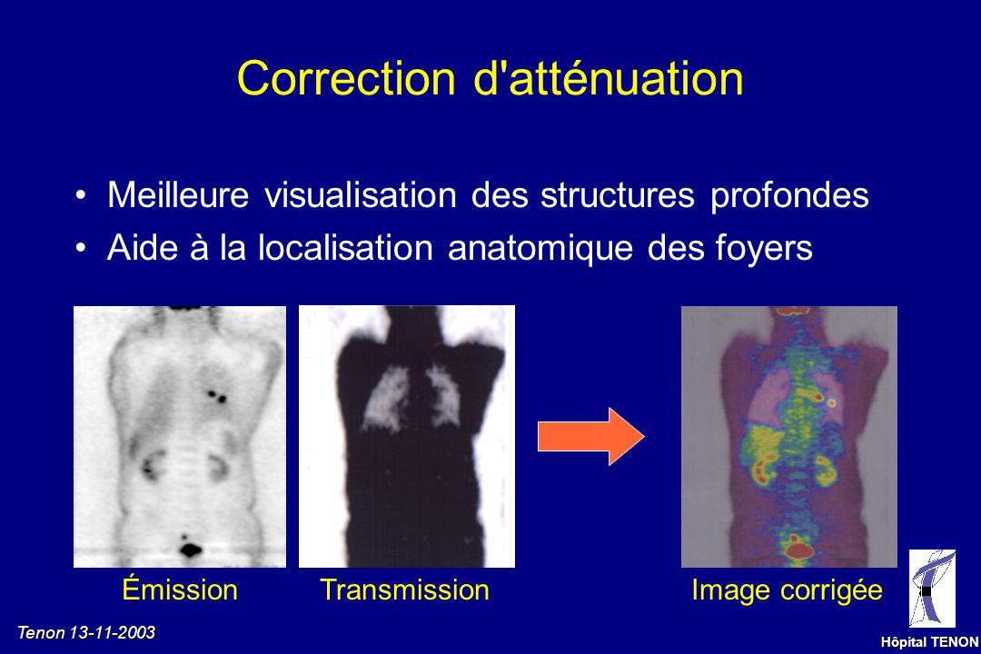 Tenon 13-11-2003 Hôpital TENON Correction d'atténuation ÉmissionTransmissionImage corrigée Meilleure visualisation des structures profondes
