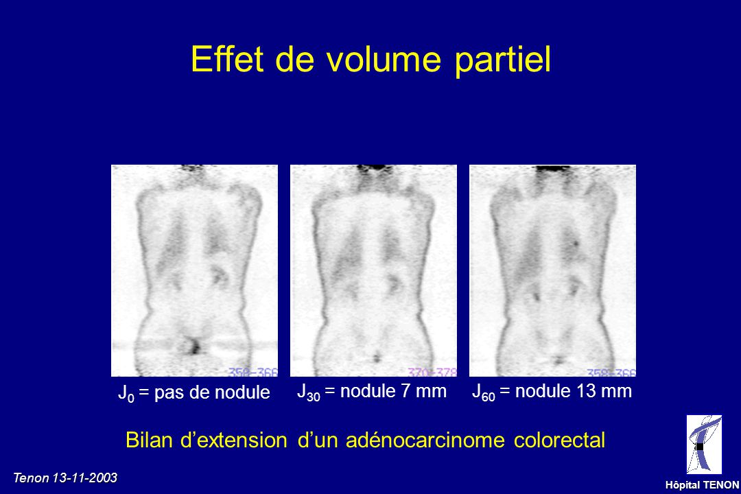 Tenon 13-11-2003 Hôpital TENON ÉmissionTransmissionImage corrigée Meilleure visualisation des structures profondes Aide à la localisation anatomique d