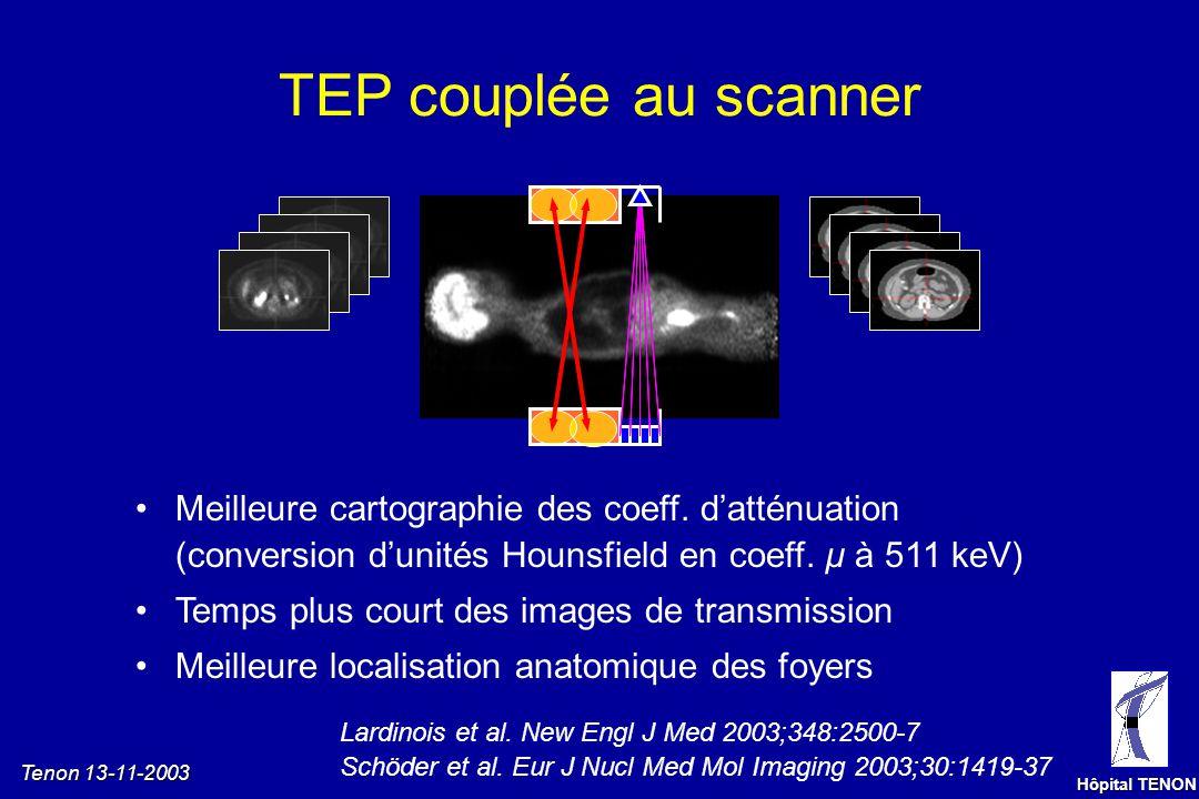Tenon 13-11-2003 Hôpital TENON Effet de volume partiel J 0 = pas de nodule J 30 = nodule 7 mmJ 60 = nodule 13 mm Bilan dextension dun adénocarcinome c