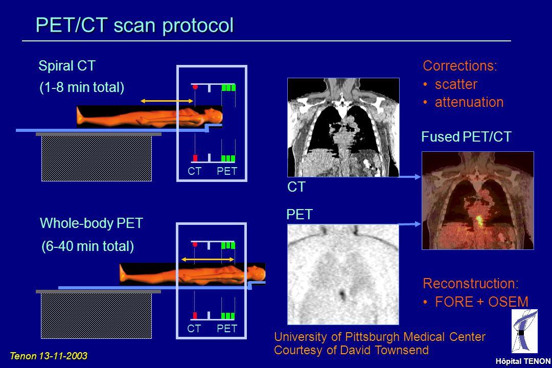 Tenon 13-11-2003 Hôpital TENON TEP couplée au scanner Lardinois et al. New Engl J Med 2003;348:2500-7 Schöder et al. Eur J Nucl Med Mol Imaging 2003;3