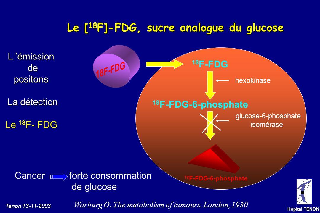 Tenon 13-11-2003 Hôpital TENON [18-F]-FLUORO-2-DESOXYGLUCOSE Le [ 18 F]-FDG, sucre analogue du glucose L émissiondepositons La détection Le 18 F- FDG