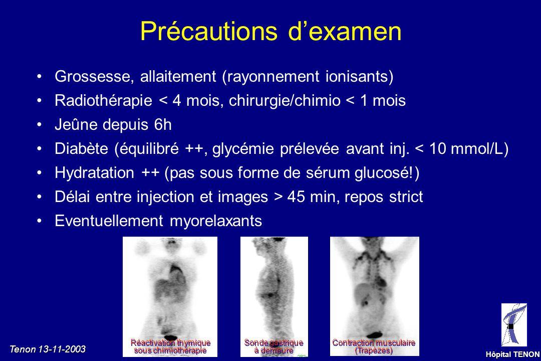 Tenon 13-11-2003 Hôpital TENON TEP au [18F]-FDG Examen normal, visualisation tridimensionnelle