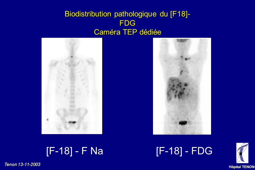 Tenon 13-11-2003 Hôpital TENON Précautions dexamen Grossesse, allaitement (rayonnement ionisants) Radiothérapie < 4 mois, chirurgie/chimio < 1 mois Je