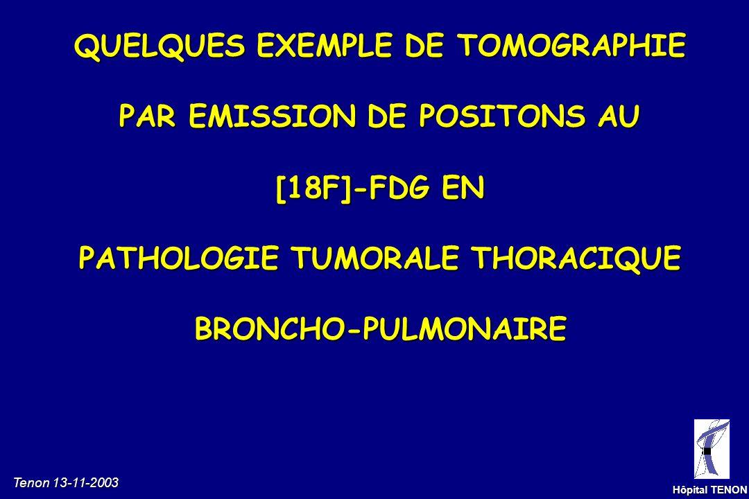 Tenon 13-11-2003 Hôpital TENON [F-18] - F Na[F-18] - FDG Biodistribution pathologique du [F18]- FDG Caméra TEP dédiée