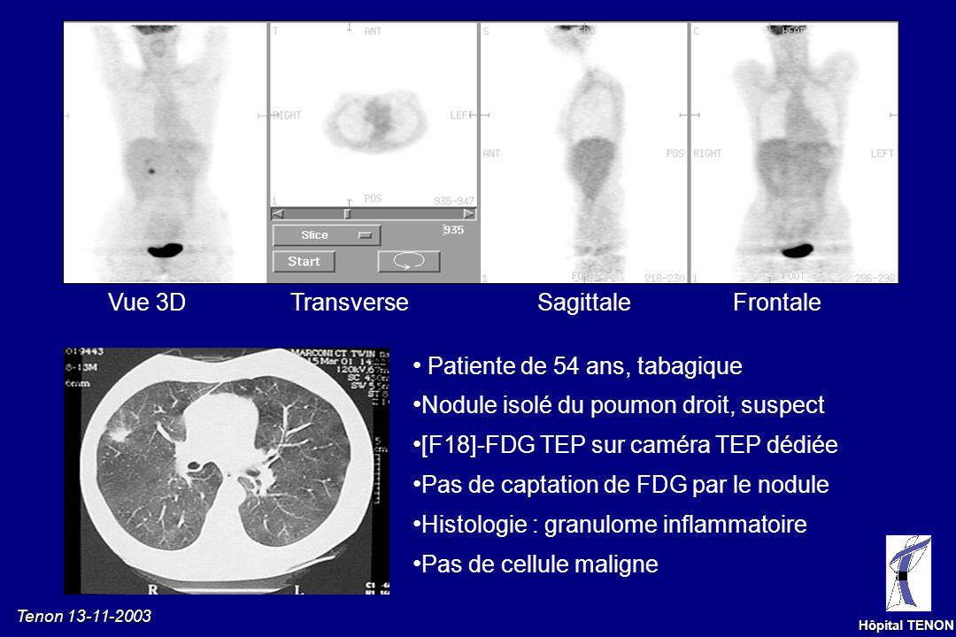 Tenon 13-11-2003 Hôpital TENON Homme de 50 ans, bilan dune paralysie de la corde vocale gauche Découverte dun carcinome à grandes cellules de 8 mm du