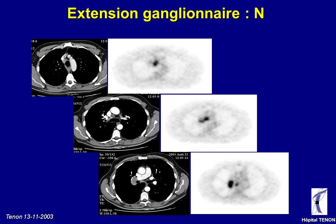 Tenon 13-11-2003 Hôpital TENON [F18]-FDG TEP = absence de captation FAUX NEGATIF : adénocarcinome avec composante bronchioloalvéolaire