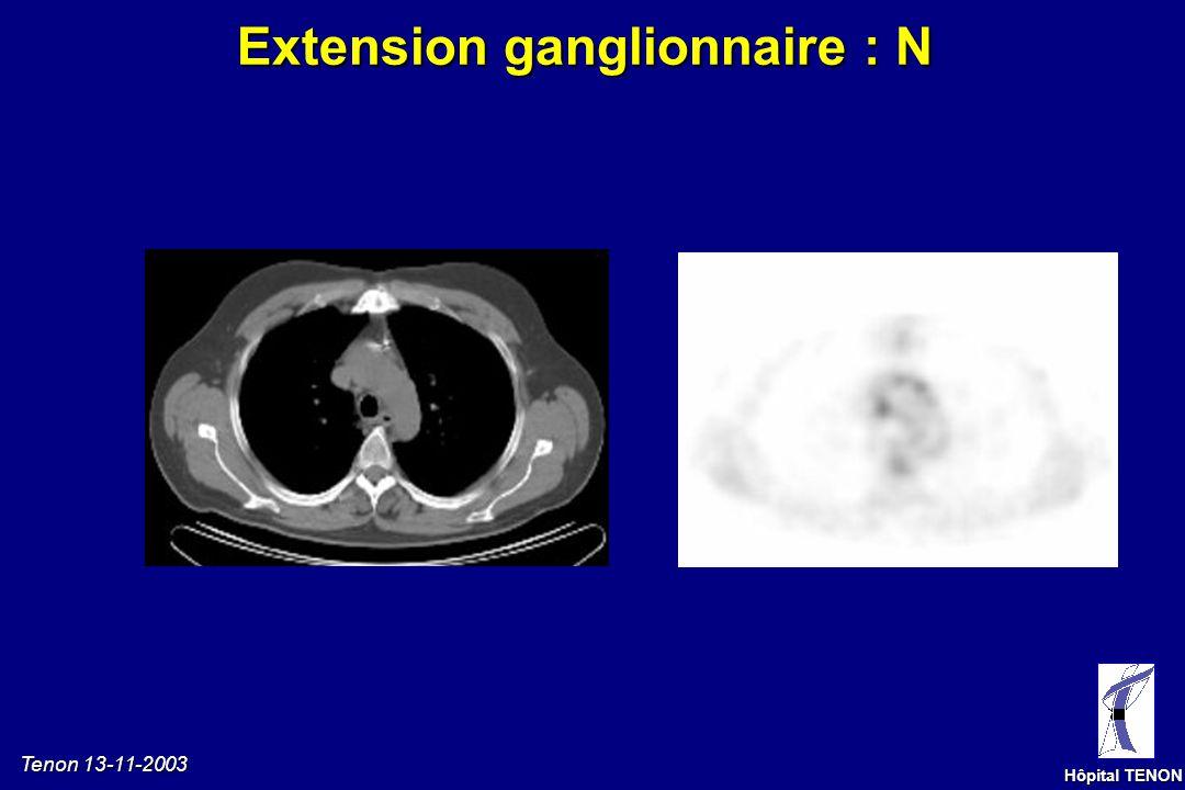 Tenon 13-11-2003 Hôpital TENON Extension ganglionnaire : N