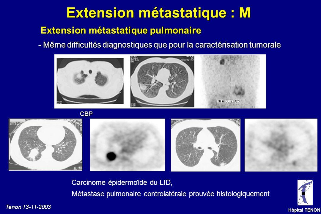 Tenon 13-11-2003 Hôpital TENON Volumineux foyer intense TDM : N0 N2 Petit foyer dintensité modérée TDM : N1 N2 Volumineux foyer dintensité modérée TDM