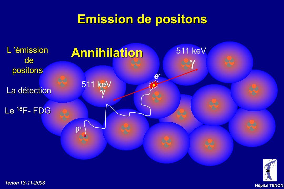 Tenon 13-11-2003 Hôpital TENON Synthèse de lémetteur de positons L émissiondepositons La détection Le 18 F- FDG Cyclotron