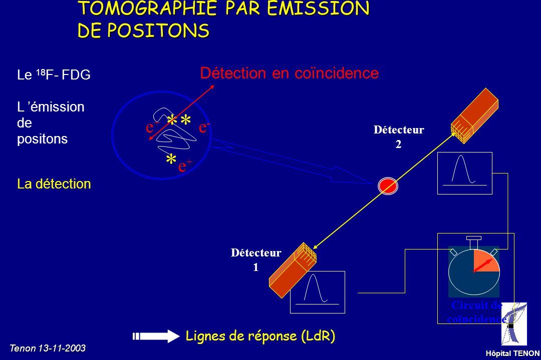Tenon 13-11-2003 Hôpital TENON 511 keV Emission de positons e-e- L émissiondepositons La détection Le 18 F- FDG Annihilation Annihilation