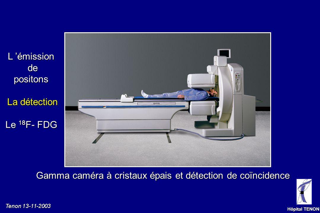 Tenon 13-11-2003 Hôpital TENON TOMOGRAPHIE PAR EMISSION DE POSITONS Détection en coïncidence Lignes de réponse (LdR) Circuit de coïncidence Détecteur