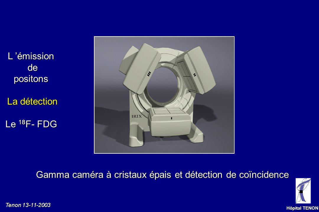 Tenon 13-11-2003 Hôpital TENON Gamma caméra à cristaux épais et détection de coïncidence L émissiondepositons La détection Le 18 F- FDG
