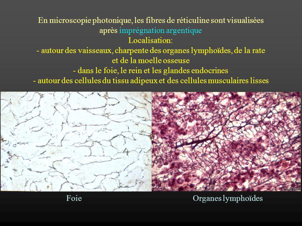 En microscopie photonique, les fibres de réticuline sont visualisées après imprégnation argentique Localisation: - autour des vaisseaux, charpente des