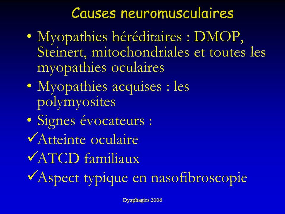Causes neuromusculaires Myopathies héréditaires : DMOP, Steinert, mitochondriales et toutes les myopathies oculaires Myopathies acquises : les polymyo
