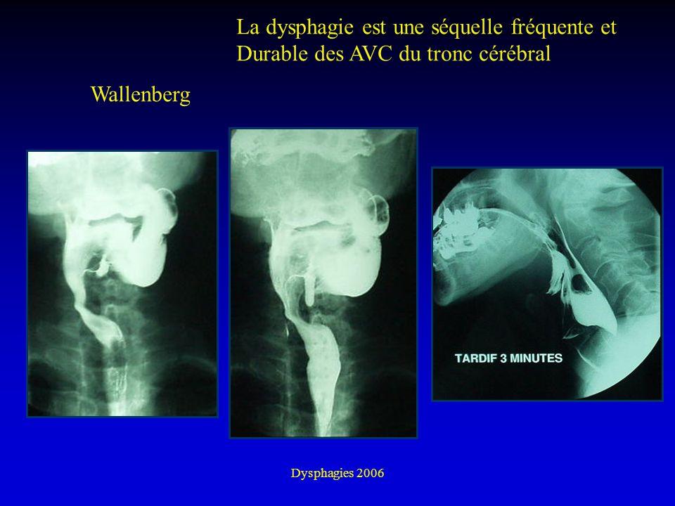 Dysphagies 2006 Wallenberg La dysphagie est une séquelle fréquente et Durable des AVC du tronc cérébral