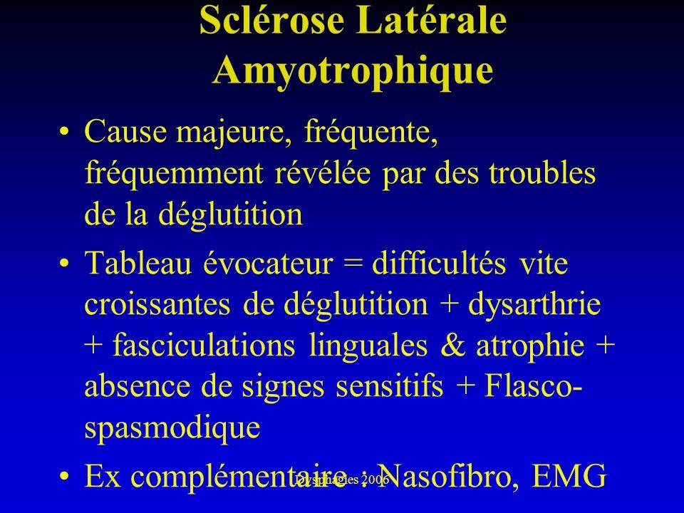 Dysphagies 2006 Sclérose Latérale Amyotrophique Cause majeure, fréquente, fréquemment révélée par des troubles de la déglutition Tableau évocateur = d