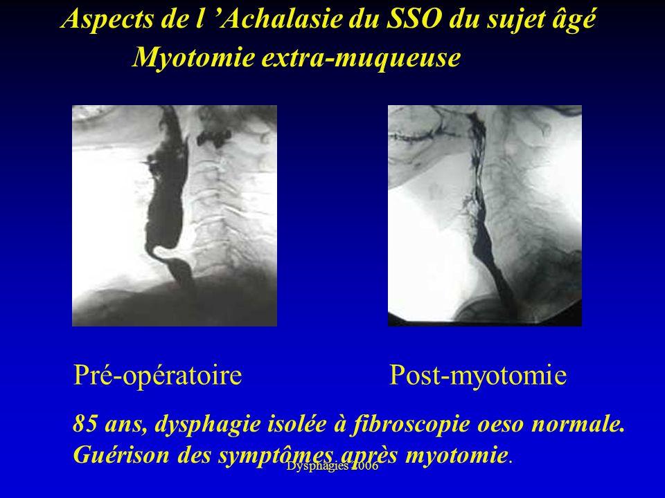 Dysphagies 2006 Aspects de l Achalasie du SSO du sujet âgé Pré-opératoirePost-myotomie Myotomie extra-muqueuse 85 ans, dysphagie isolée à fibroscopie