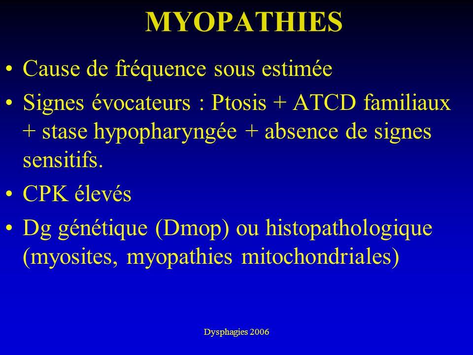 Dysphagies 2006 MYOPATHIES Cause de fréquence sous estimée Signes évocateurs : Ptosis + ATCD familiaux + stase hypopharyngée + absence de signes sensi