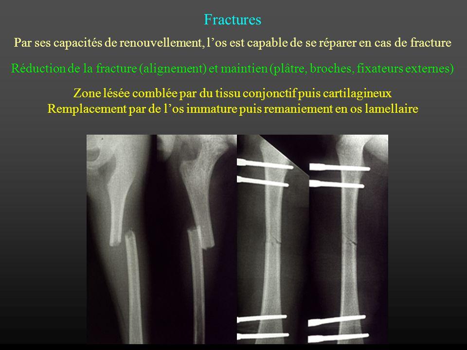 Fractures Par ses capacités de renouvellement, los est capable de se réparer en cas de fracture Réduction de la fracture (alignement) et maintien (plâ