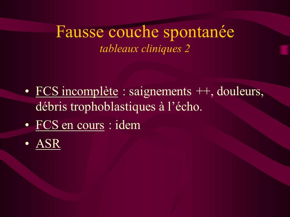 Fausse couche spontanée tableaux cliniques 2 FCS incomplète : saignements ++, douleurs, débris trophoblastiques à lécho. FCS en cours : idem ASR