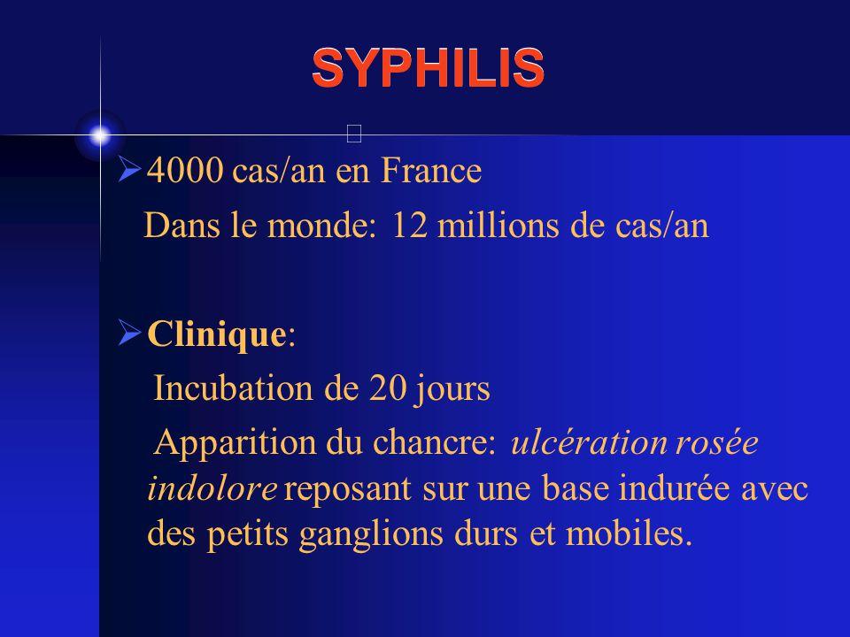 SYPHILIS 4000 cas/an en France Dans le monde: 12 millions de cas/an Clinique: Incubation de 20 jours Apparition du chancre: ulcération rosée indolore