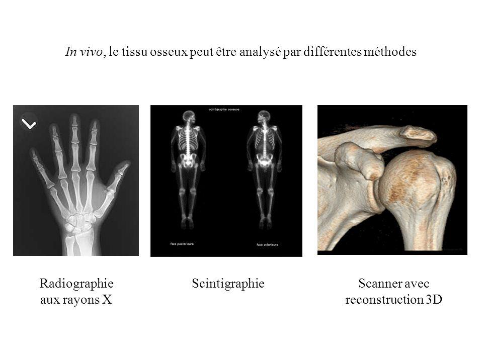 In vivo, le tissu osseux peut être analysé par différentes méthodes Radiographie aux rayons X Scintigraphie Scanner avec reconstruction 3D