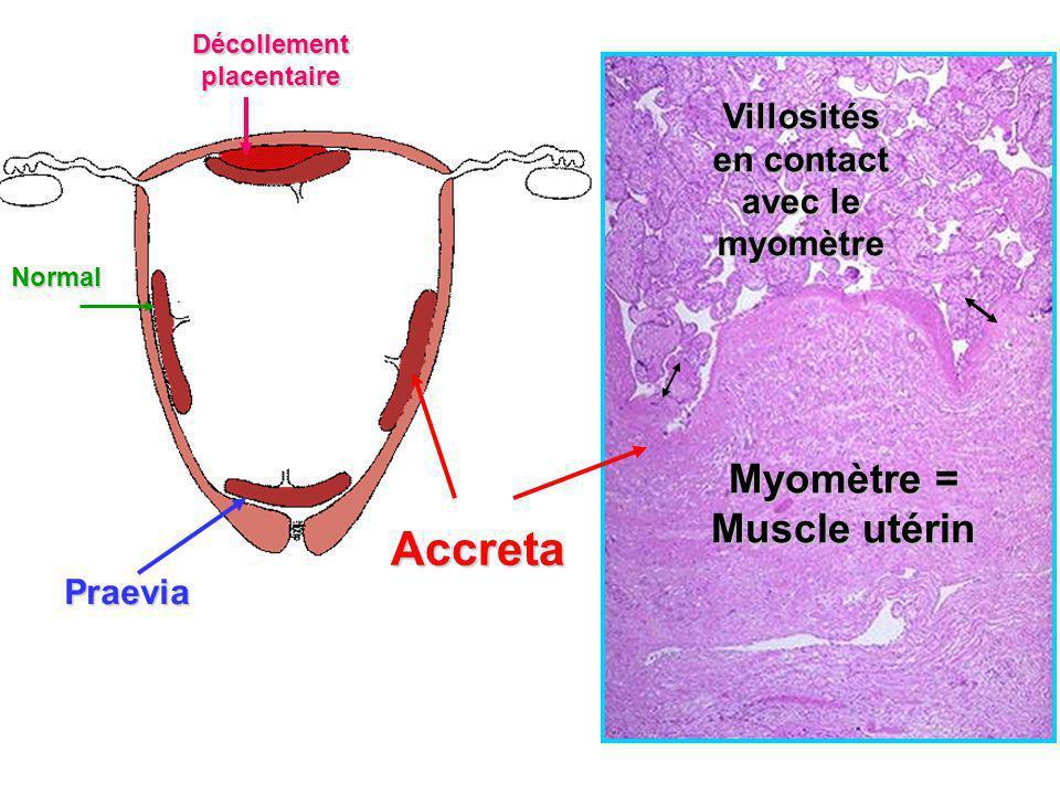 Normal Praevia Accreta Décollement placentaire Villosités en contact avec le myomètre Myomètre = Muscle utérin