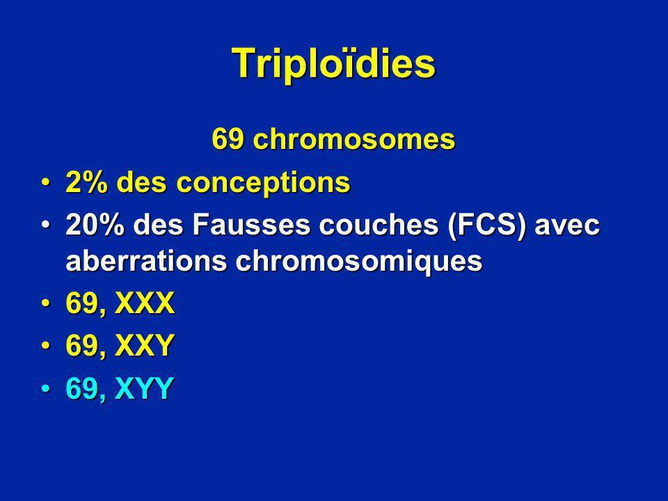 Triploïdies 69 chromosomes 2% des conceptions2% des conceptions 20% des Fausses couches (FCS) avec aberrations chromosomiques20% des Fausses couches (