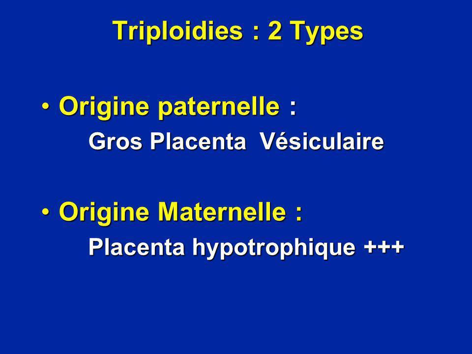 Triploidies : 2 Types Origine paternelle :Origine paternelle : Gros Placenta Vésiculaire Gros Placenta Vésiculaire Origine Maternelle :Origine Materne