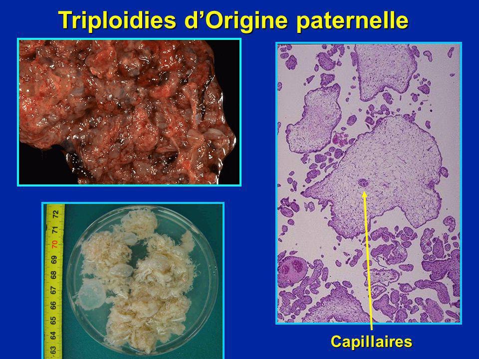 Triploidies dOrigine paternelle Capillaires