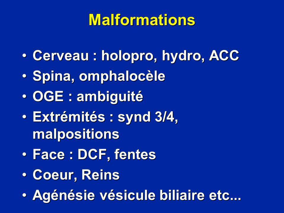 Malformations Cerveau : holopro, hydro, ACCCerveau : holopro, hydro, ACC Spina, omphalocèleSpina, omphalocèle OGE : ambiguitéOGE : ambiguité Extrémité