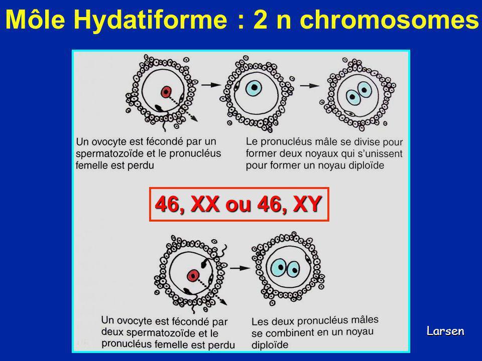 Môle Hydatiforme : 2 n chromosomes 46, XX ou 46, XY Larsen
