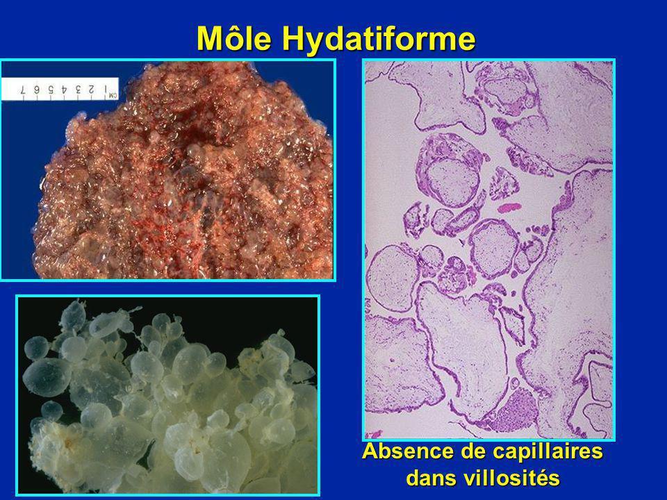 Môle Hydatiforme Absence de capillaires dans villosités