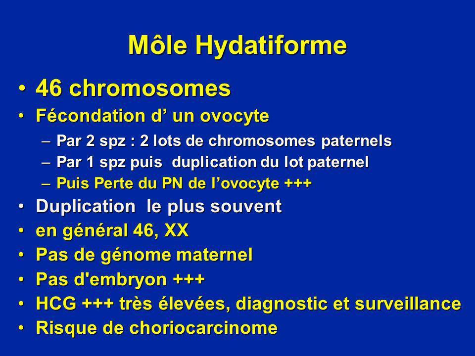 Môle Hydatiforme 46 chromosomes46 chromosomes Fécondation d un ovocyteFécondation d un ovocyte –Par 2 spz : 2 lots de chromosomes paternels –Par 1 spz