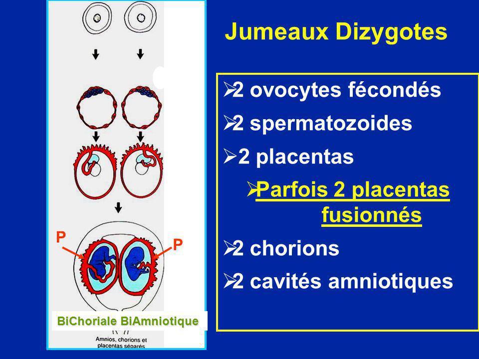 Jumeaux Dizygotes 2 ovocytes fécondés 2 spermatozoides 2 placentas Parfois 2 placentas fusionnés 2 chorions 2 cavités amniotiques P P BiChoriale BiAmn