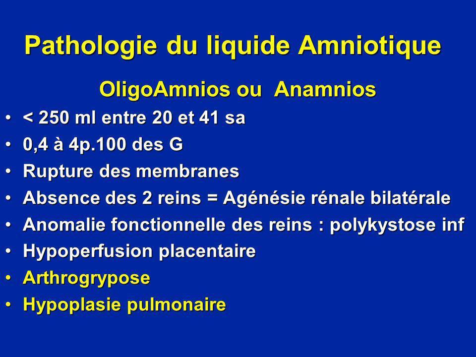 Pathologie du liquide Amniotique OligoAmnios ou Anamnios < 250 ml entre 20 et 41 sa< 250 ml entre 20 et 41 sa 0,4 à 4p.100 des G0,4 à 4p.100 des G Rup
