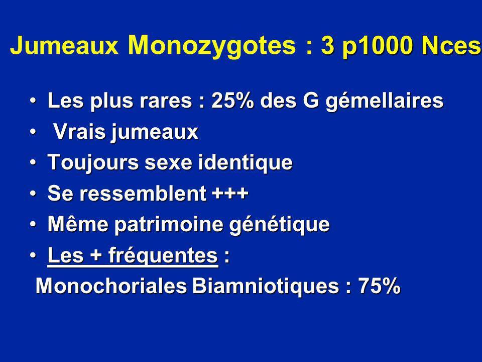 3 p1000 Nces Jumeaux Monozygotes : 3 p1000 Nces Les plus rares : 25% des G gémellairesLes plus rares : 25% des G gémellaires Vrais jumeaux Vrais jumea