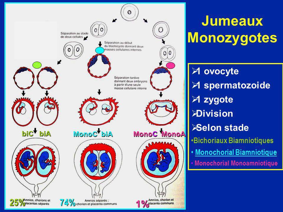 Jumeaux Monozygotes 1 ovocyte 1 spermatozoide 1 zygote Division Selon stade Bichoriaux Biamniotiques Monochorial Biamniotique Monochorial Monoamniotiq