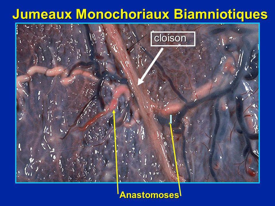 Jumeaux Monochoriaux Biamniotiques Anastomoses cloison