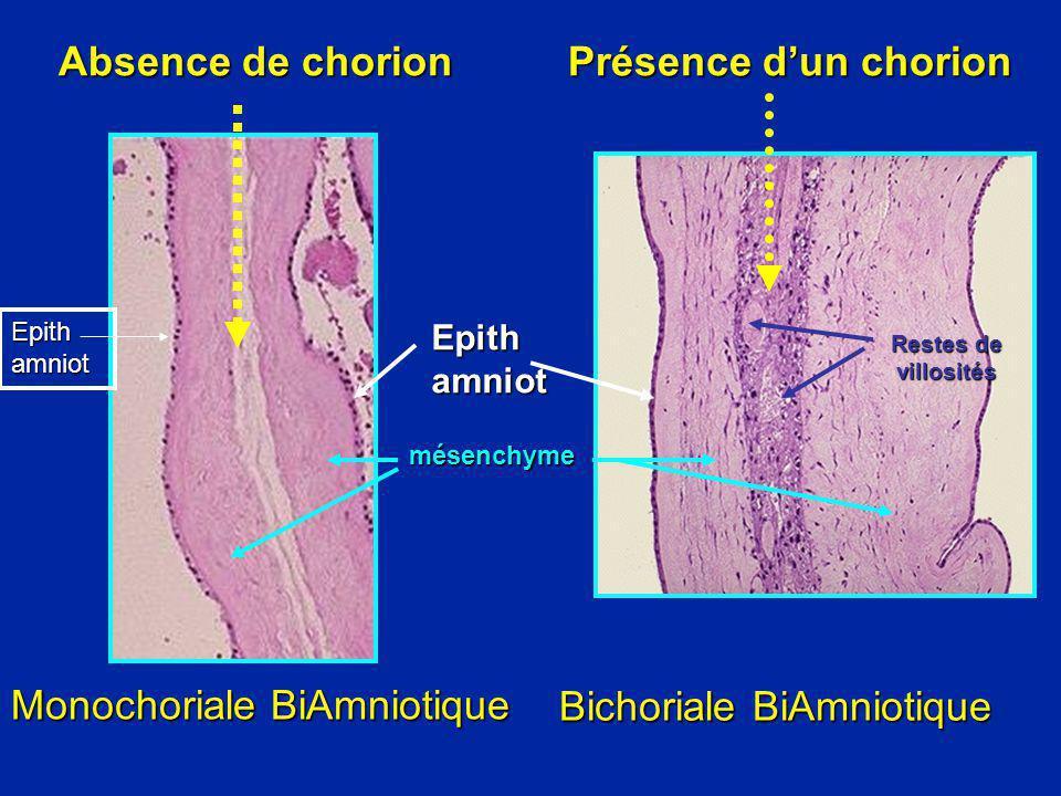 Monochoriale BiAmniotique Bichoriale BiAmniotique Absence de chorion Présence dun chorion Absence de chorion Présence dun chorion Restes de villosités