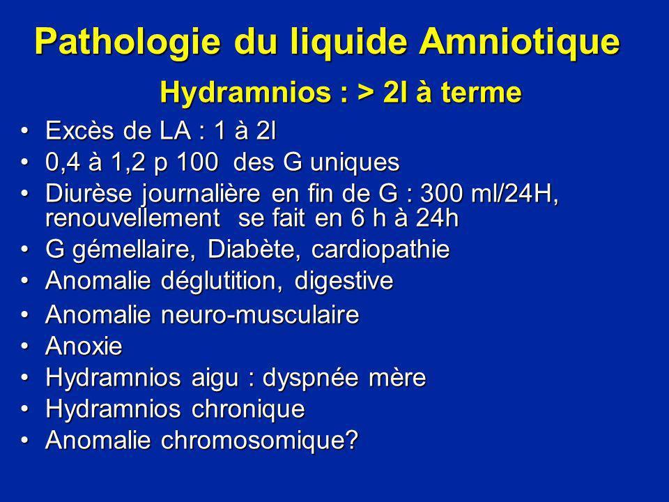 Pathologie du liquide Amniotique Hydramnios : > 2l à terme Excès de LA : 1 à 2lExcès de LA : 1 à 2l 0,4 à 1,2 p 100 des G uniques0,4 à 1,2 p 100 des G