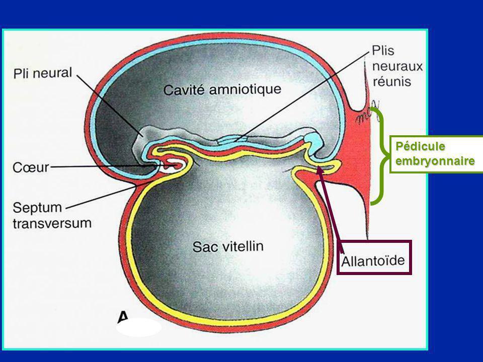 Pédicule embryonnaire