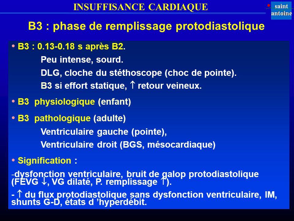 INSUFFISANCE CARDIAQUE B3 : phase de remplissage protodiastolique B3 : 0.13-0.18 s après B2.