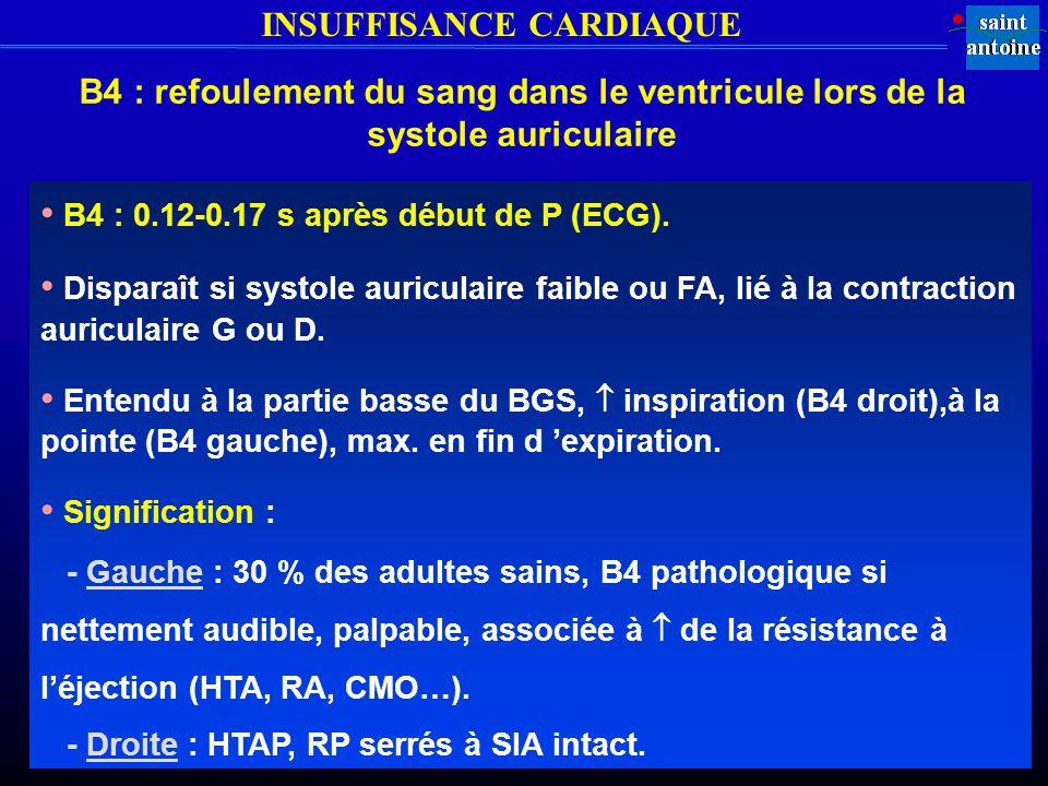 INSUFFISANCE CARDIAQUE B4 : refoulement du sang dans le ventricule lors de la systole auriculaire B4 : 0.12-0.17 s après début de P (ECG).