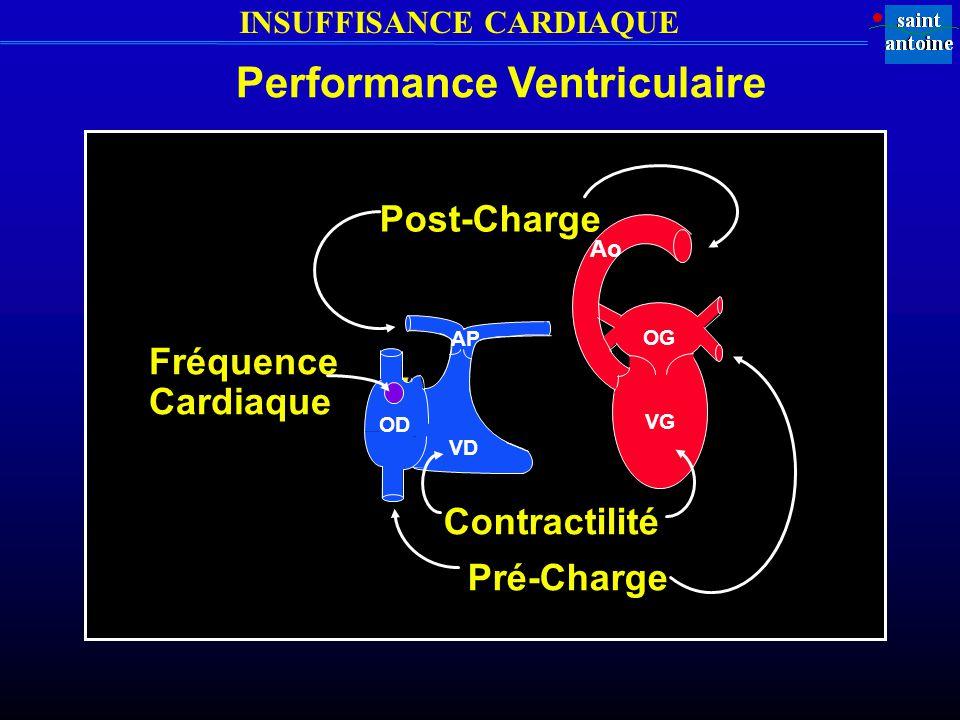 INSUFFISANCE CARDIAQUE OD VD AP VG OG Ao Post-Charge Pré-Charge Contractilité Fréquence Cardiaque Performance Ventriculaire