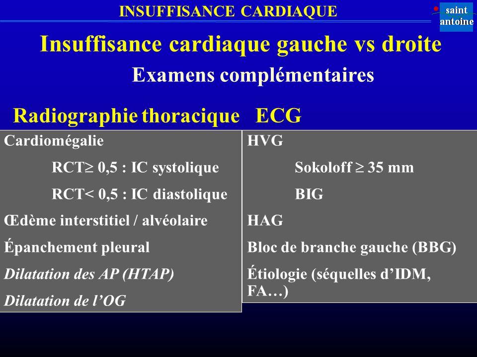 INSUFFISANCE CARDIAQUE Insuffisance cardiaque gauche vs droite Examens complémentaires Cardiomégalie RCT 0,5 : IC systolique RCT< 0,5 : IC diastolique Œdème interstitiel / alvéolaire Épanchement pleural Dilatation des AP (HTAP) Dilatation de lOG Radiographie thoracique HVG Sokoloff 35 mm BIG HAG Bloc de branche gauche (BBG) Étiologie (séquelles dIDM, FA…) ECG