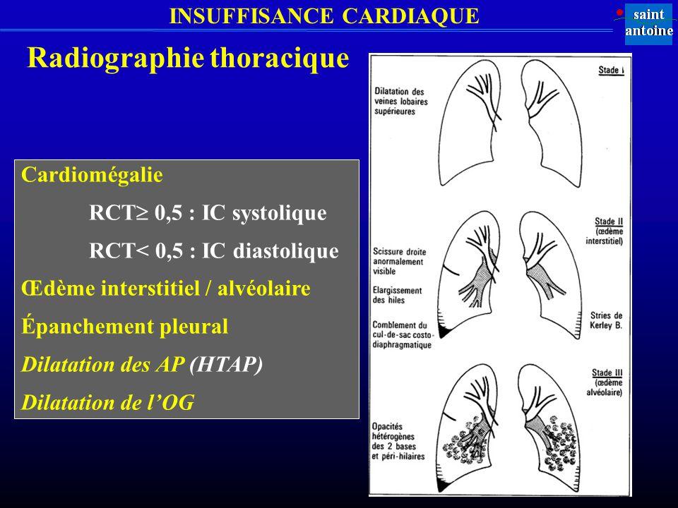 INSUFFISANCE CARDIAQUE Radiographie thoracique Cardiomégalie RCT 0,5 : IC systolique RCT< 0,5 : IC diastolique Œdème interstitiel / alvéolaire Épanchement pleural Dilatation des AP (HTAP) Dilatation de lOG