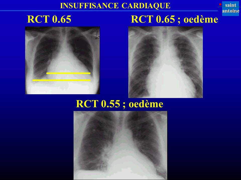 INSUFFISANCE CARDIAQUE RCT 0.65RCT 0.65 ; oedème RCT 0.55 ; oedème